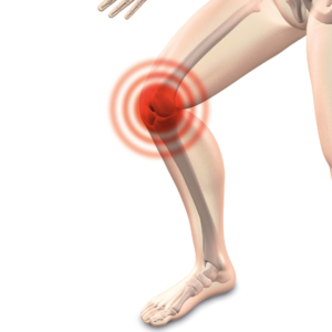 Knee Pain Treatment in Everett