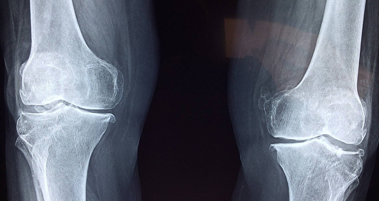 Suffering from Knee Pain?